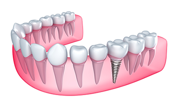 Dental Implants in Grand Forks, ND